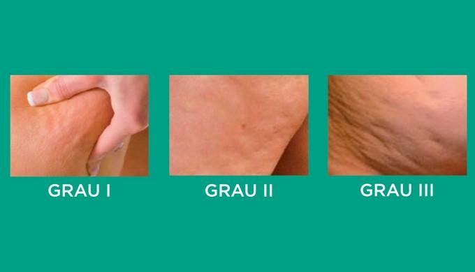 Grau de Celulite
