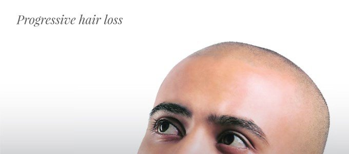 Progressive hair loss